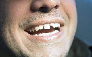 Franklin Square, Broken Tooth